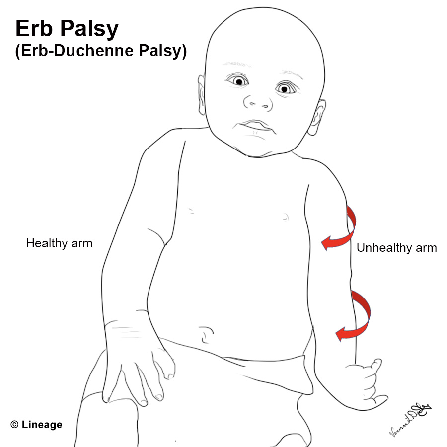 https://upload.medbullets.com/topic/112010/images/04052018vldstep1erbpalsy.jpg