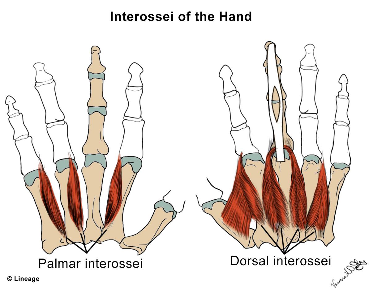 Intrinsic Hand Muscles - MSK - Medbullets Step 1