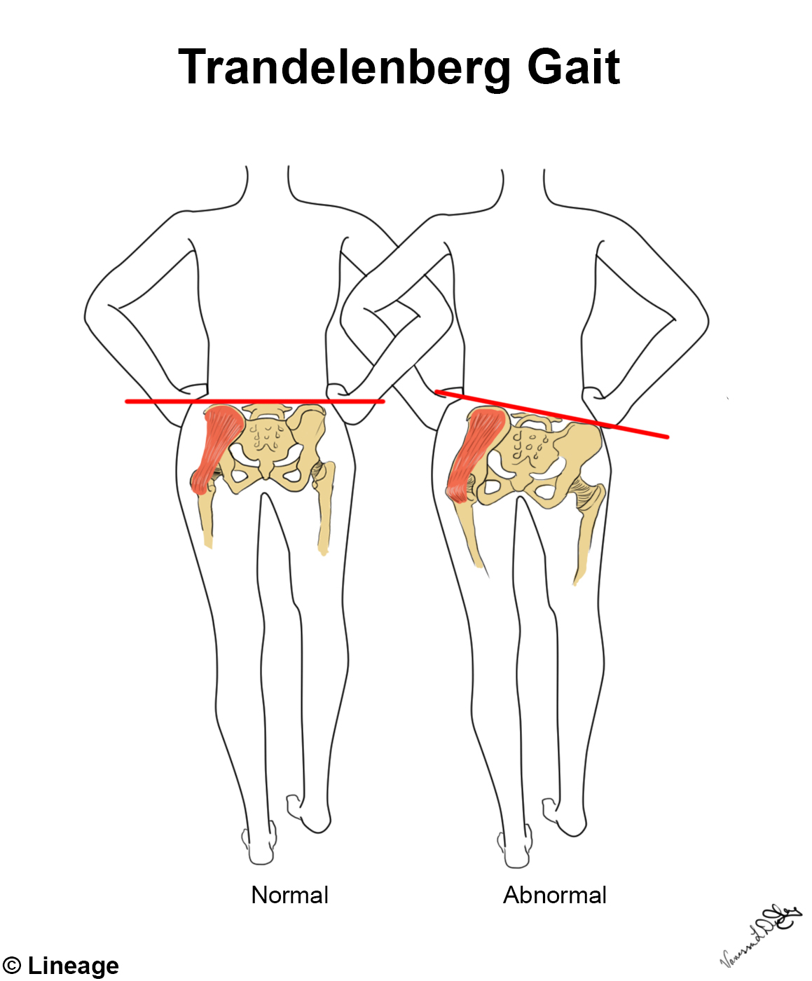 Lower Extremity Innervation Msk Medbullets Step 1