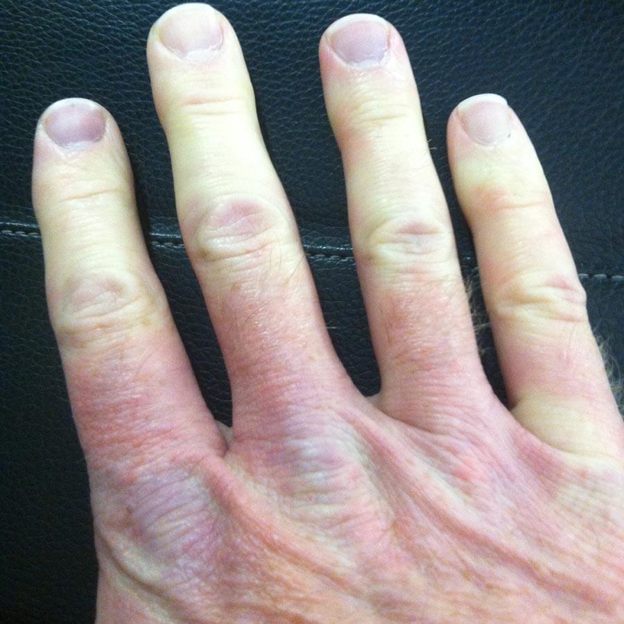 Ring On Black Finger Turn Grren