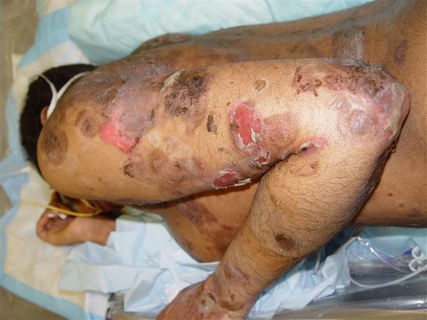 Kawasaki Disease Medbullets