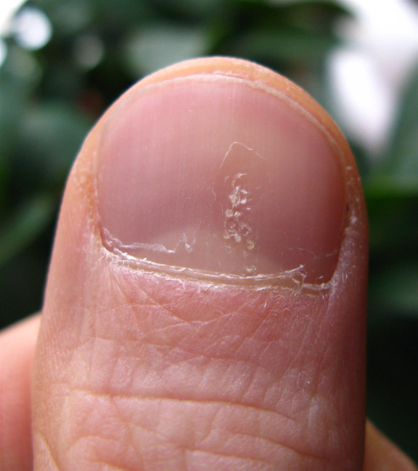 Nail Disorders - Dermatology - Medbullets Step 1