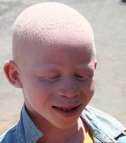 an introduction to the definition of albinism an inherited conditions Albinism is another genetic condition that can turn a bird's plumage pale, but there are distinct differences between albino and leucistic birds leucism affects only the bird's feathers, and typically only those with melanin pigment, usually dark feathers.