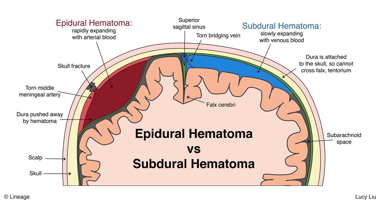 intracranial hemorrhage neurology medbullets step 1 diagram of the meninges covering the brain and spinal cord diagram of the meninges covering the brain