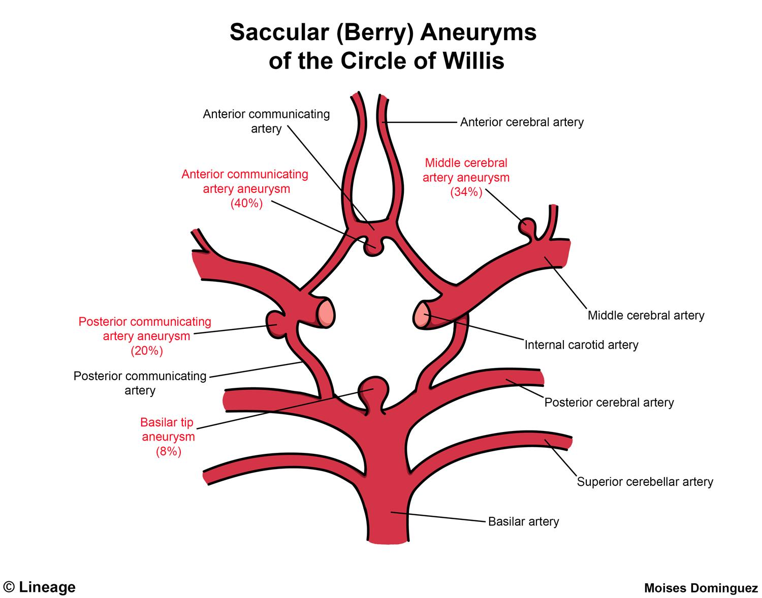 Aneurysms - Neurology - Medbullets Step 1