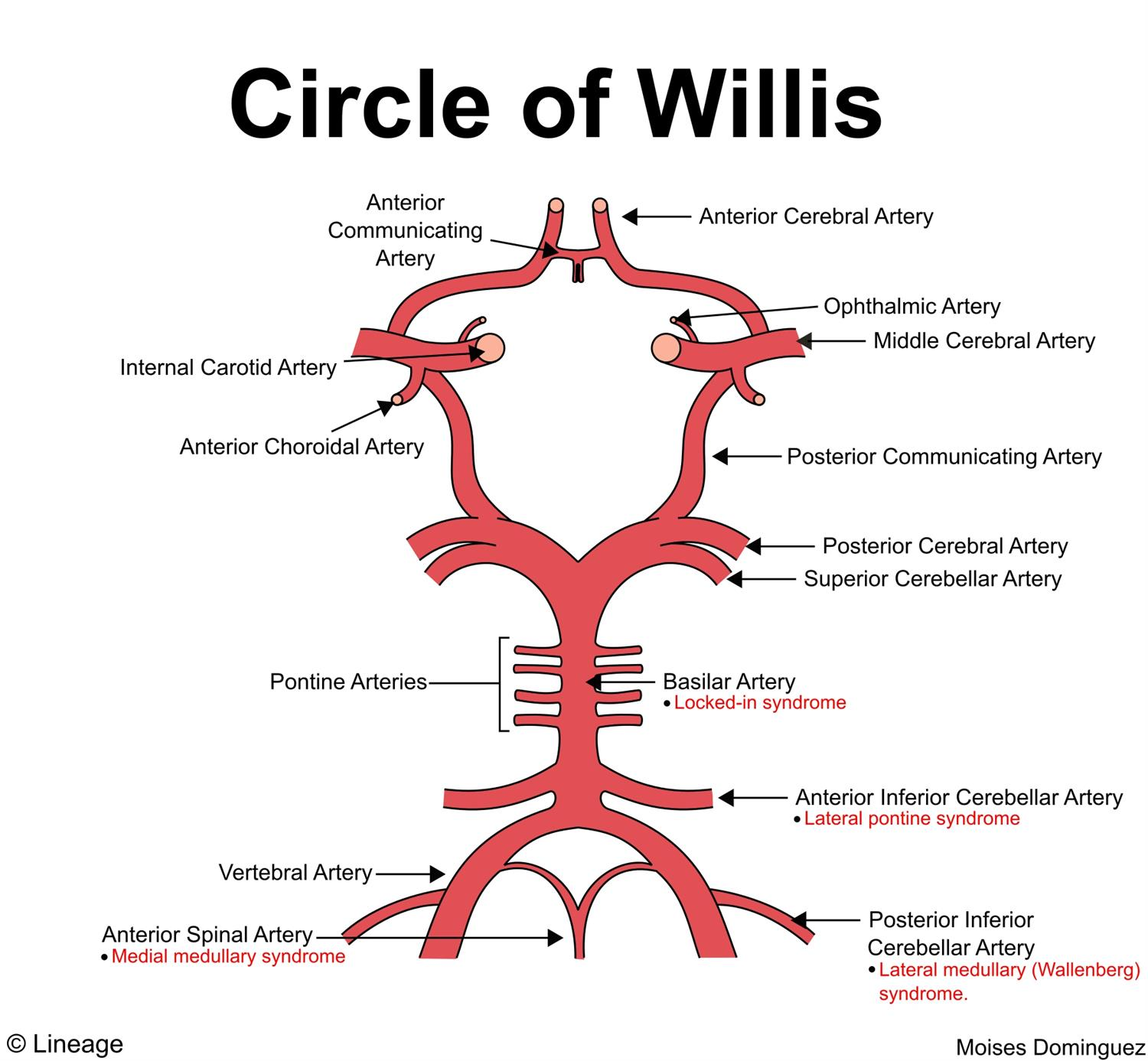Circle of Willis - Neurology - Medbullets Step 1