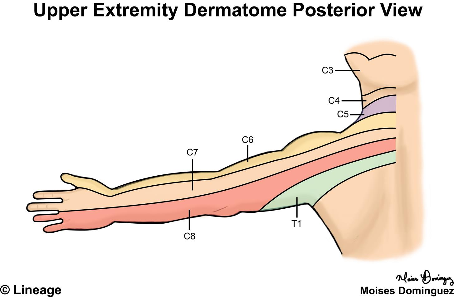 What is a Dermatome? - Definition & Distribution - Video ...