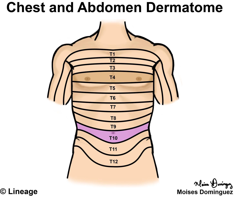 Dermatomes - Neurology - Medbullets Step 1 on