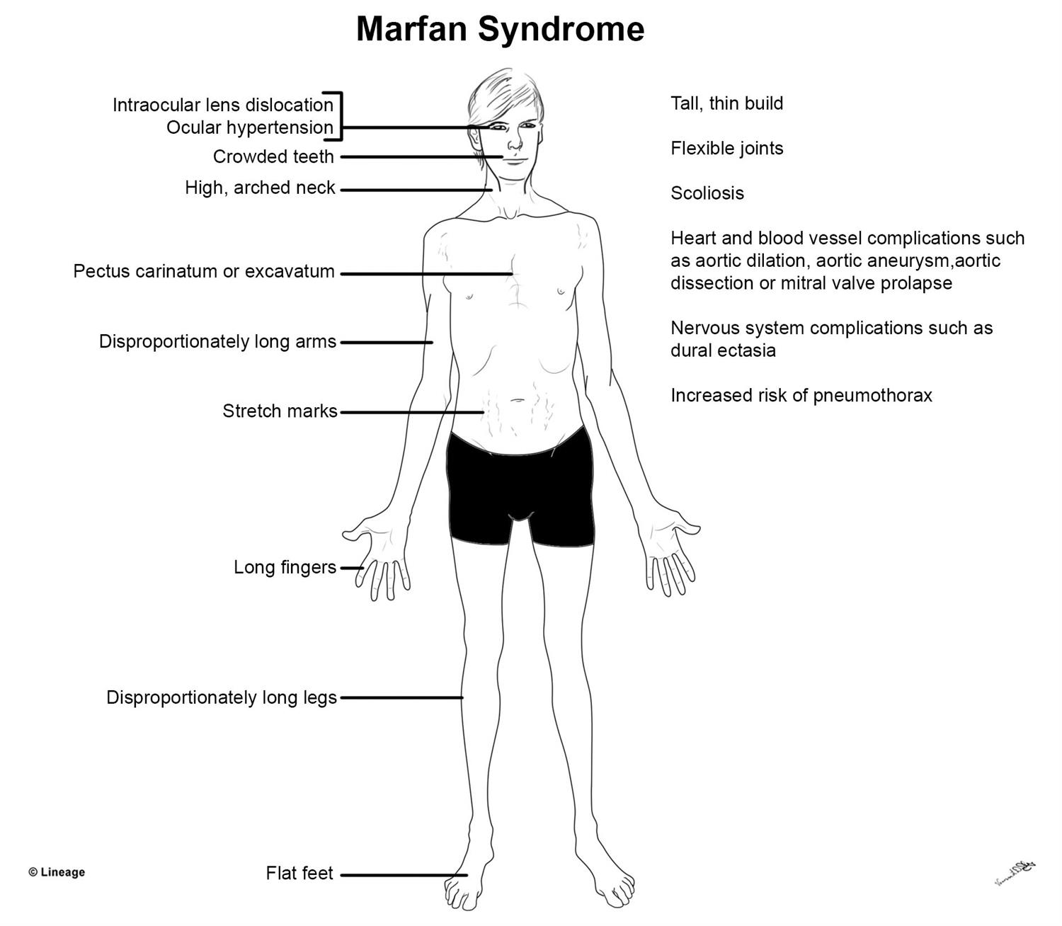 https://upload.medbullets.com/topic/113055/images/marfan_syndrome.jpg
