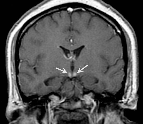 Wernicke-Korsakoff Syndrome - Neurology - Medbullets Step 1