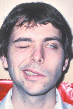 Day, unilateral facial palsy good
