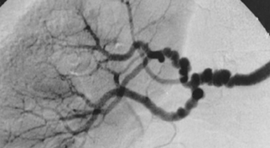 This clinical image of angiogram shows the string-of-beads appearance of fibromuscular dysplasia.