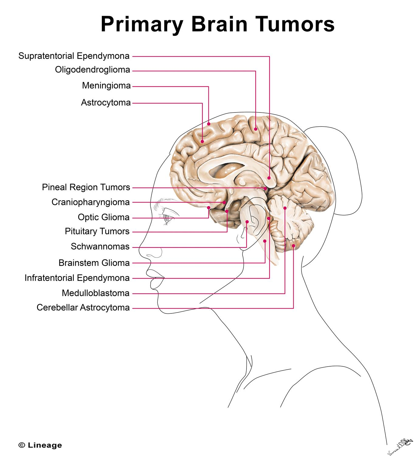 Primary Brain Tumors - Oncology - Medbullets Step 1