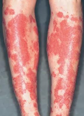 Hartnup Disease - Renal - Medbullets Step 1