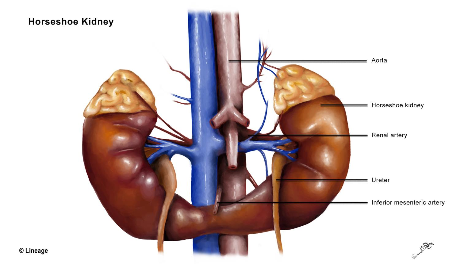Horseshoe Kidney Renal Medbullets Step 1