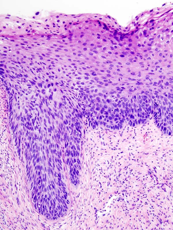 https://upload.medbullets.com/topic/116034/images/cervical_intraepithelial_neoplasia_(4)_cin3.jpg