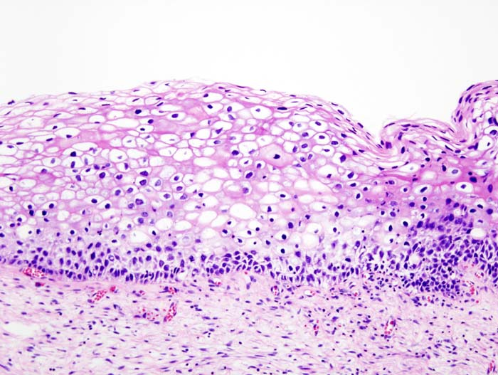 https://upload.medbullets.com/topic/116034/images/cervical_intraepithelial_neoplasia_1_koilocytosis.jpg