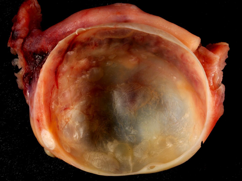 simple follicular ovarian cyst