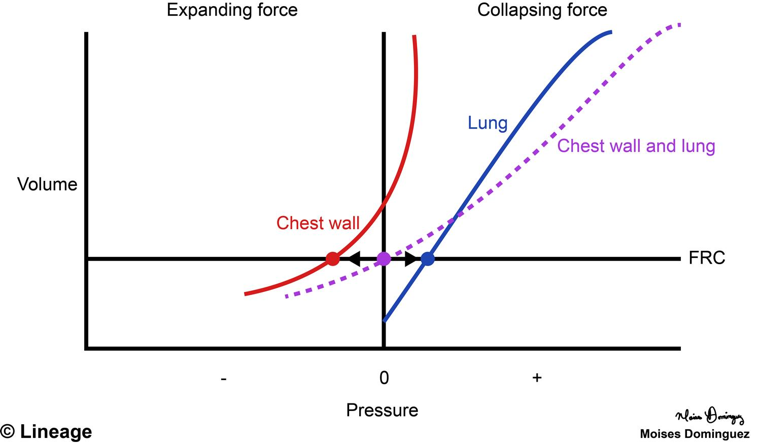 Pressure volume curve respiratory medbullets step 1 describes distensibility of respiratory ccuart Choice Image