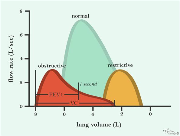 Obstructive lung disease overview respiratory medbullets step 1 a class of lung diseases characterized by an obstruction to air flow leaving the lungs ccuart Choice Image