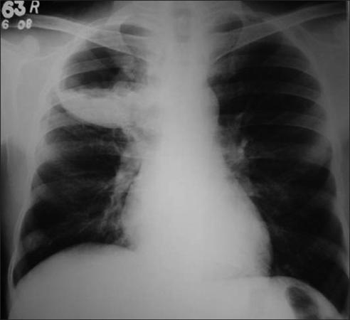 lung abscess