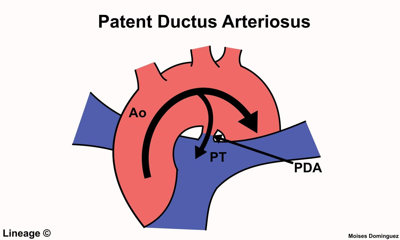 Patent Ductus Arteriosus Pda Cardiovascular Medbullets Step 23