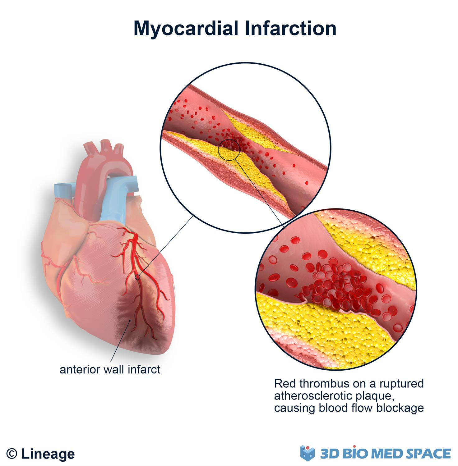 Myocardial infarction anatomy