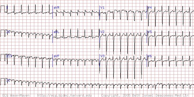 atrial flutter cardiovascular medbullets step 2 3