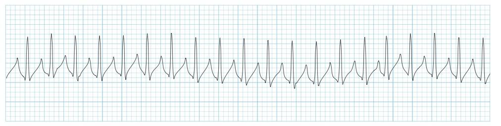 Supraventricular Tachycardia Cardiovascular Medbullets Step 2 3