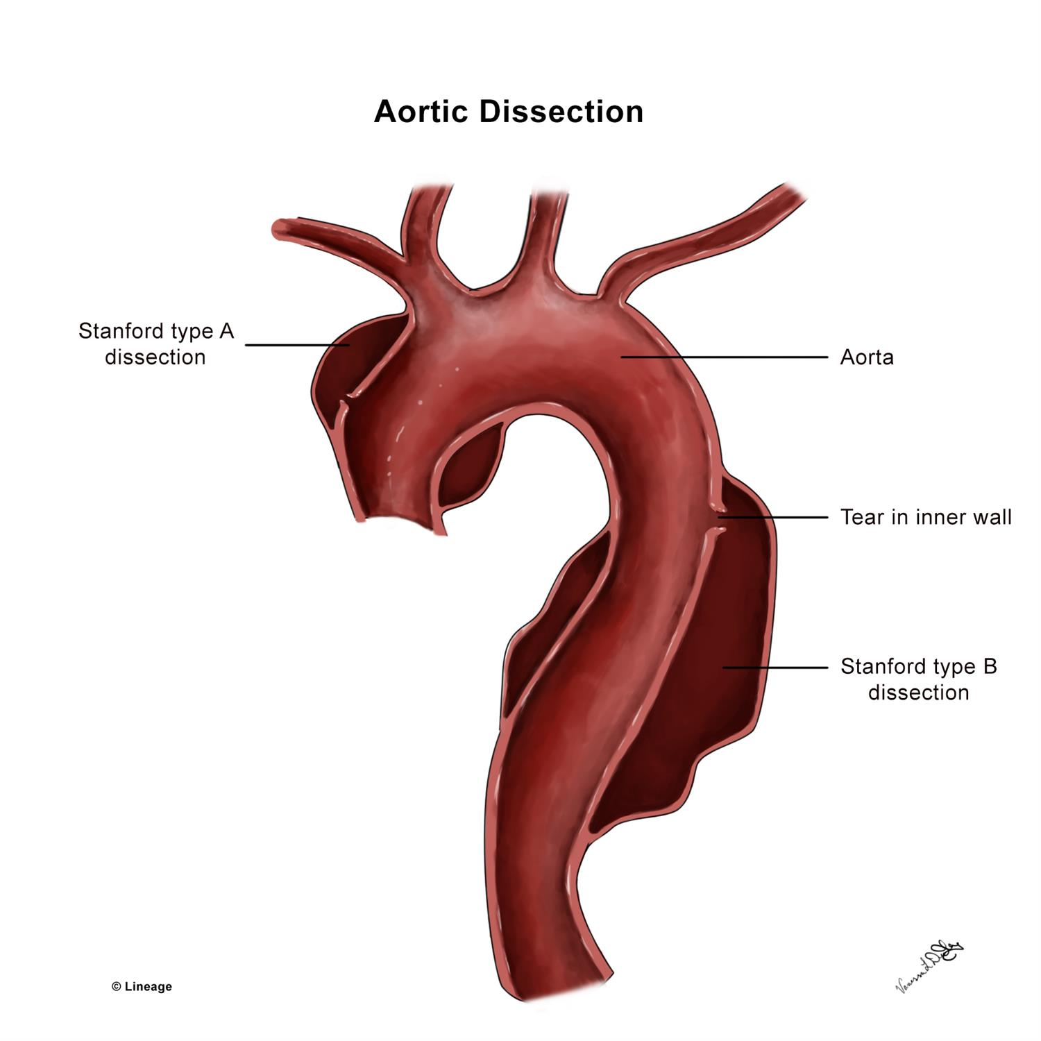 https://upload.medbullets.com/topic/120030/images/09122017vldcardianaorticdissectionmmedits.jpg