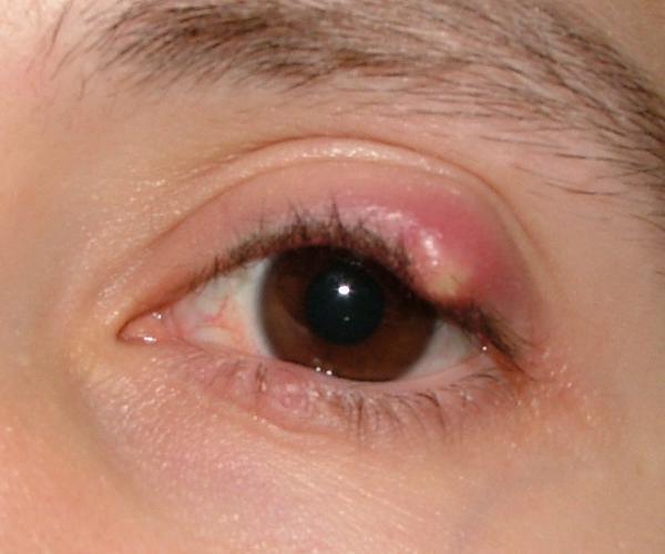 Chalezion cyst