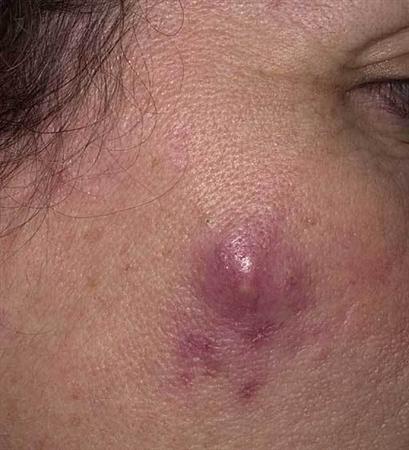 Folliculitis Dermatology Medbullets Step 2 3