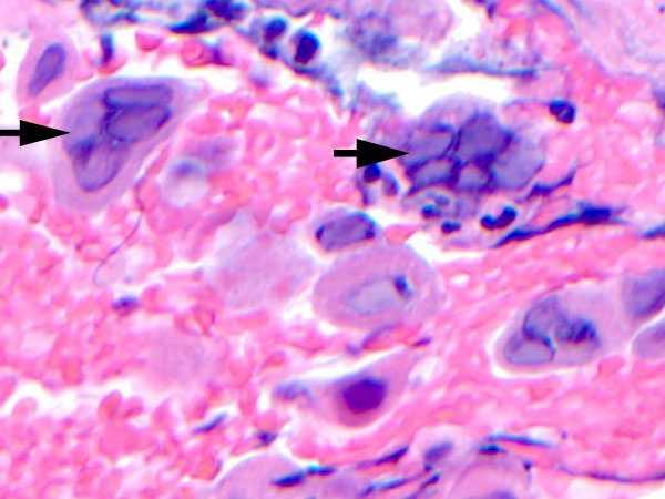 Herpes Simplex - Dermatology - Medbullets Step 2/3