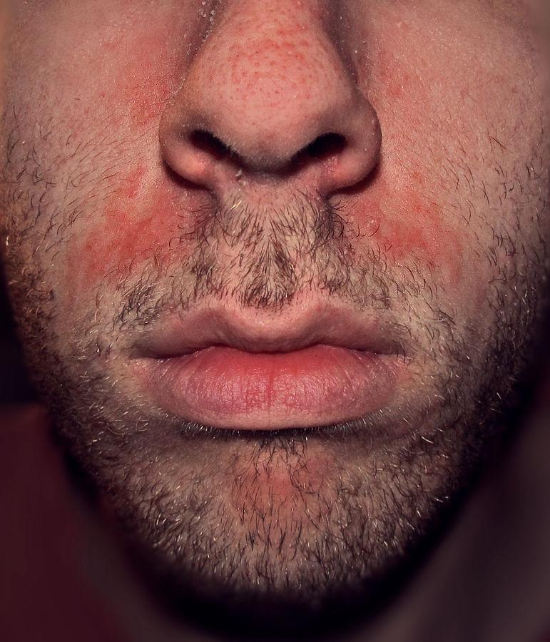Seborrheic Dermatitis Dermatology Medbullets Step 2 3