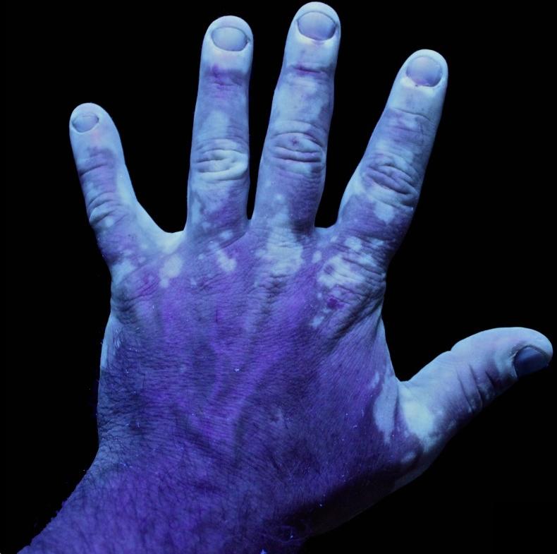 Vitiligo Dermatology Medbullets Step 2 3