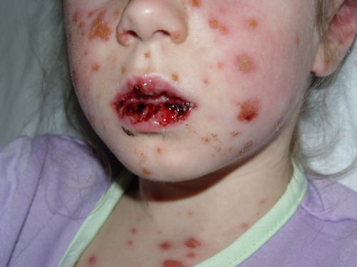 This clinical pictures shows extensive mucosal involvement in the blistering skin disease, SJS/TEN