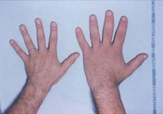 https://upload.medbullets.com/topic/120094/images/acromegaly_hands..jpg