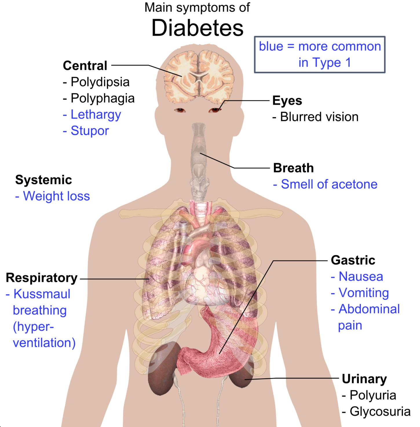 Diabetes Mellitus - Endocrine - Medbullets Step 2/3