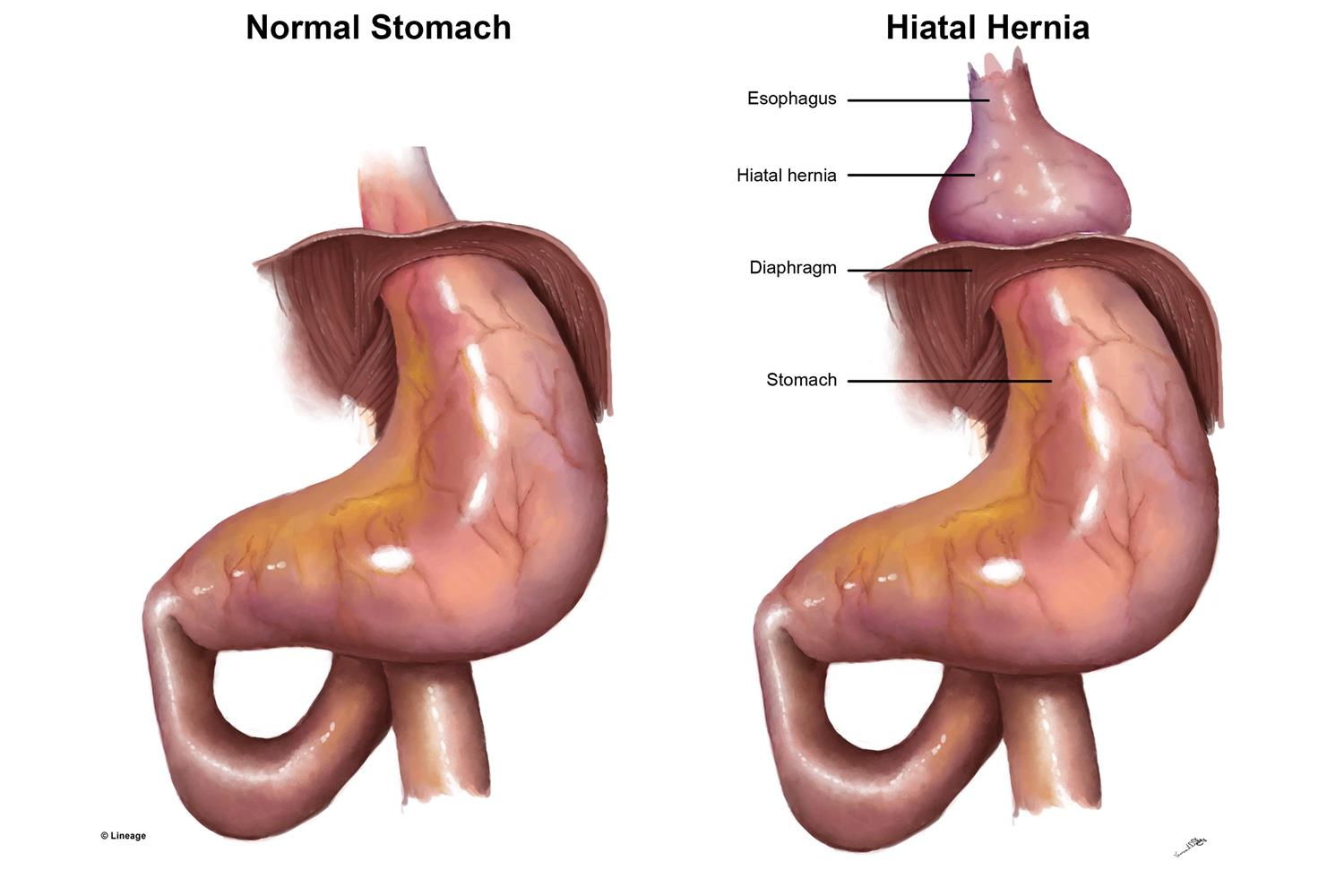 https://upload.medbullets.com/topic/120143/images/hiatal_hernia.jpg