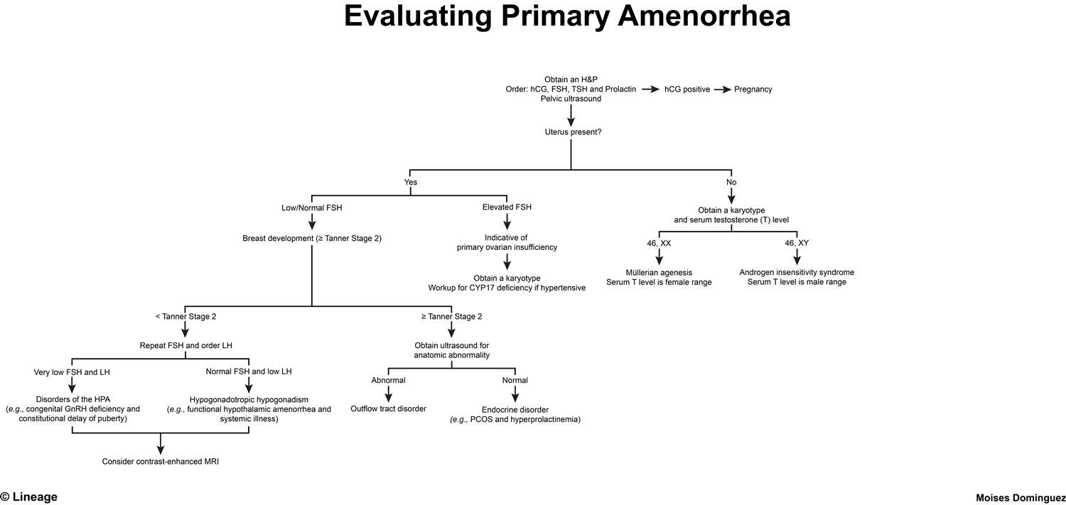 Primary Amenorrhea - Gynecology - Medbullets Step 2/3