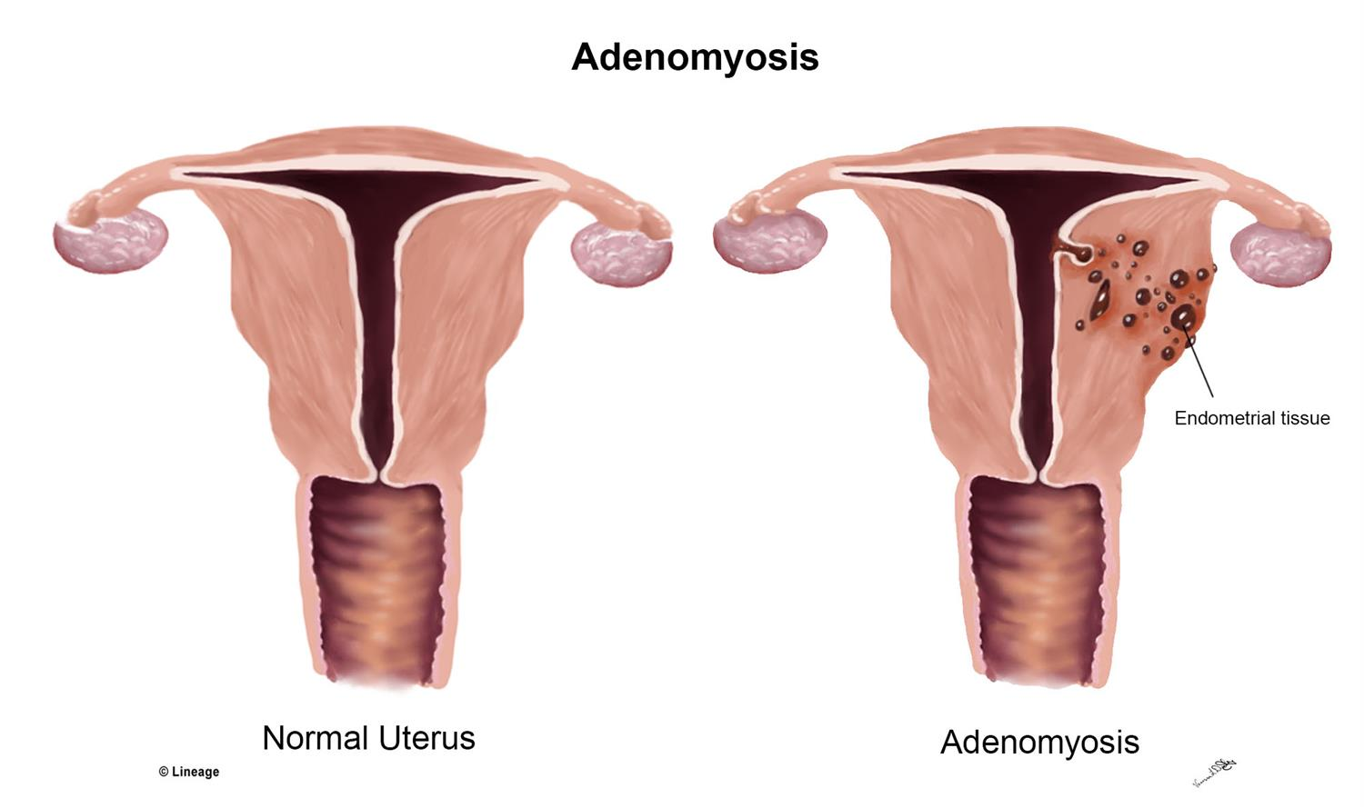 Image result for adenomyosis