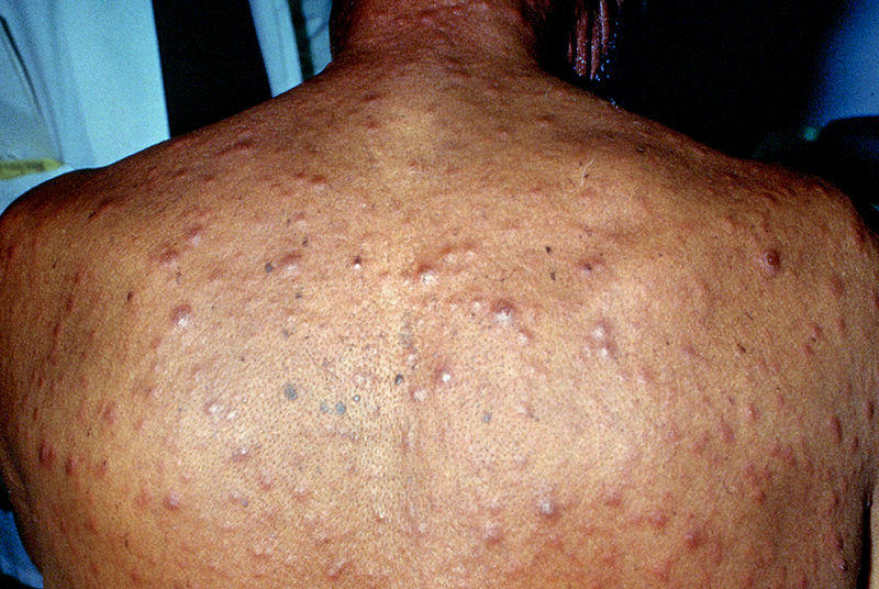 Syphilis (Adult) - Infectious Dis  - Medbullets Step 2/3