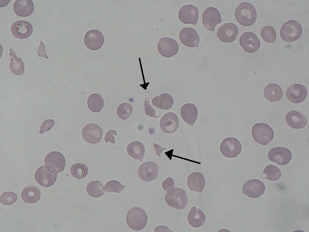 https://upload.medbullets.com/topic/120243/images/schizocyte_smear_2009-12-22.jpg