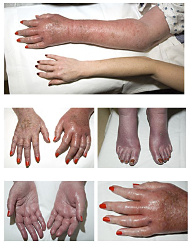 https://upload.medbullets.com/topic/120246/images/erythromelalgia.jpg
