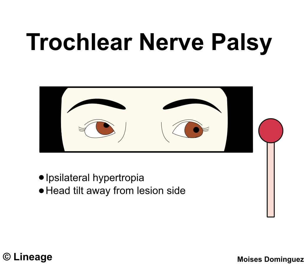 Cranial Nerve Palsies - Neurology - Medbullets Step 2/3