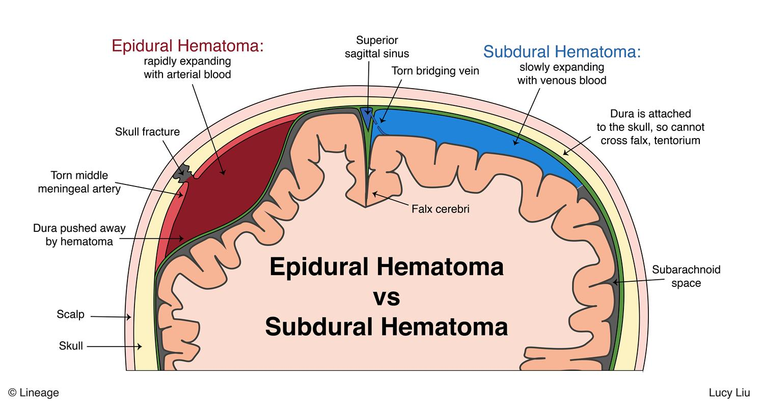 Subdural Hematoma - Neurology - Medbullets Step 2/3