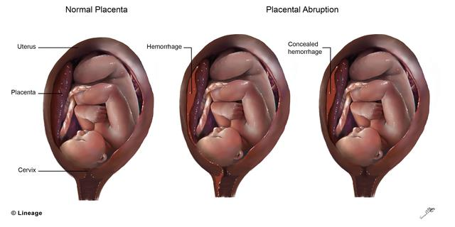 Abruptio Placentae - Obstetrics - Medbullets Step 2/3