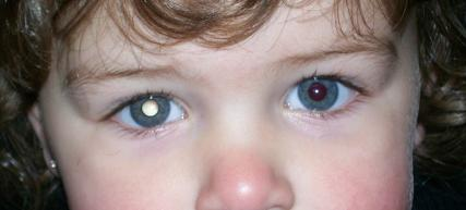 https://upload.medbullets.com/topic/120405/images/retinoblastoma.jpg
