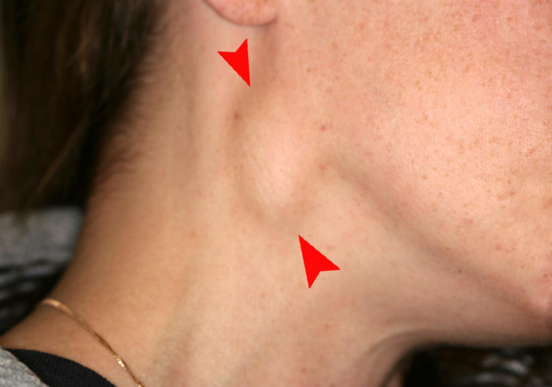 https://upload.medbullets.com/topic/120411/images/cervical_lymphadenopathy_right_neck.jpg