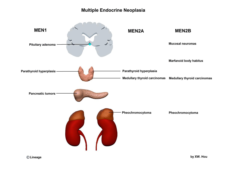 https://upload.medbullets.com/topic/120415/images/men_type-v2.jpg